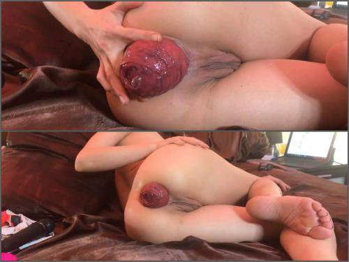 Amateur skinny wife show her really shocking size prolapse anal - anal stretching, dirty wife